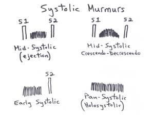 SystolicMrmrs